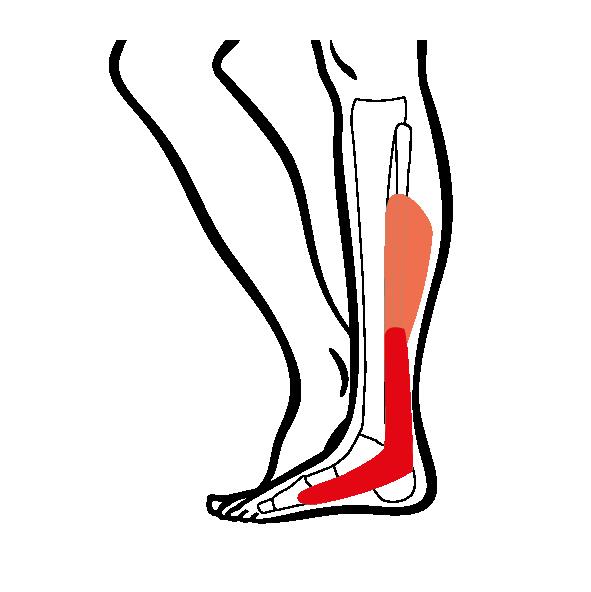 Tipps zu Krankheitsbildern Fuß- & Sprunggelenk